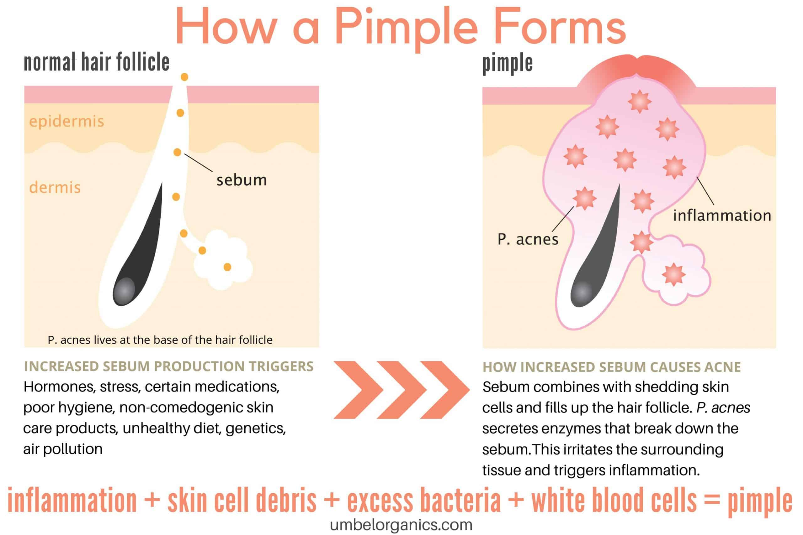 Infographic showing how a pimple forms