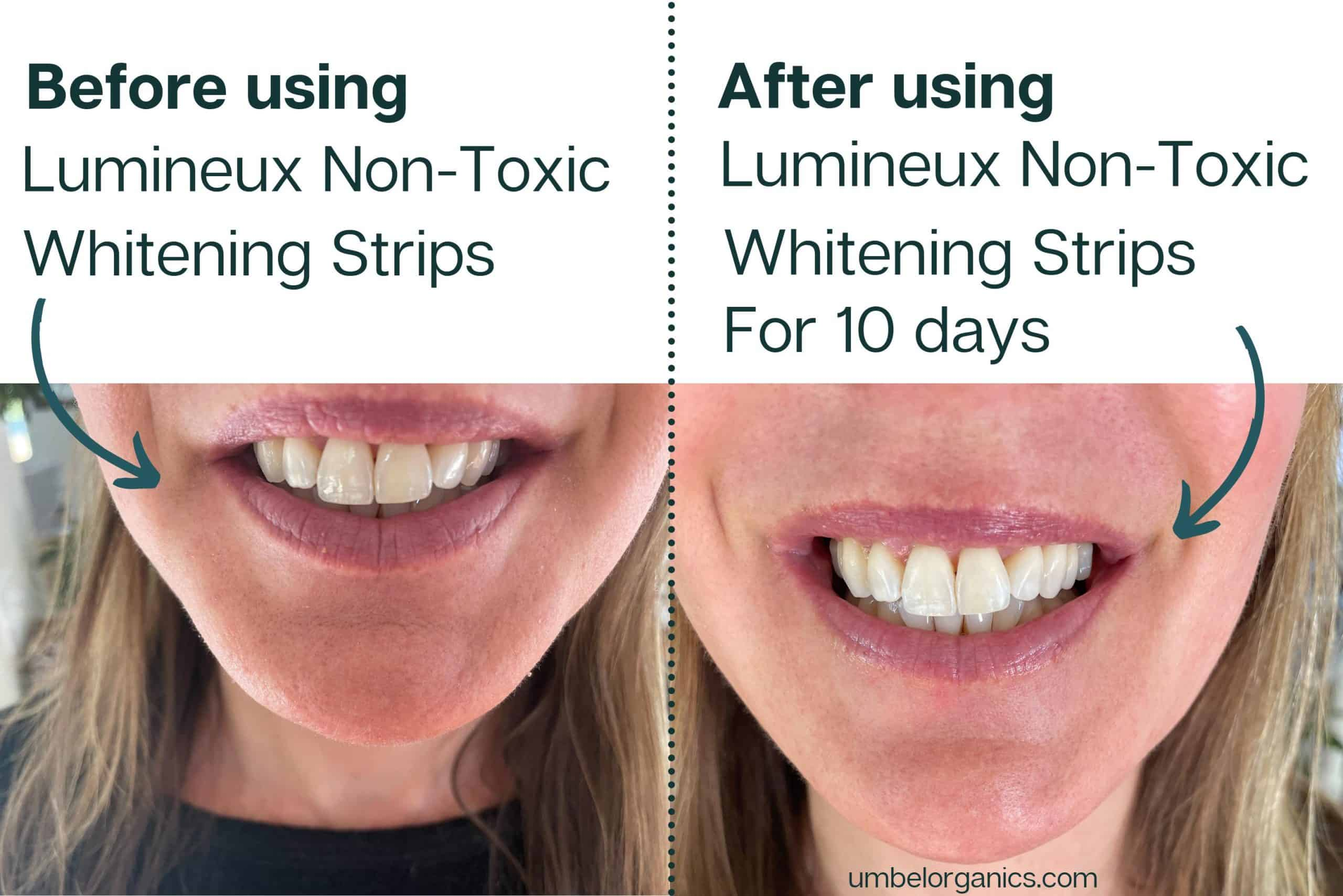 Before and After Using Lumineux Non-Toxic Whitening Strips